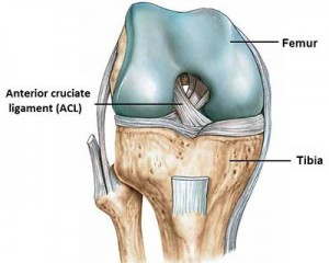 ACL arthroscopy surgery